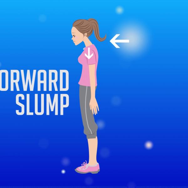 forward slump
